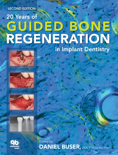 20 Years of Guided Bone Regeneration in Implant Dentistry  2nd 2009 edition cover