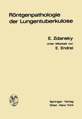Rontgenpathologie der Lungentuberkulose   1968 9783709151037 Front Cover