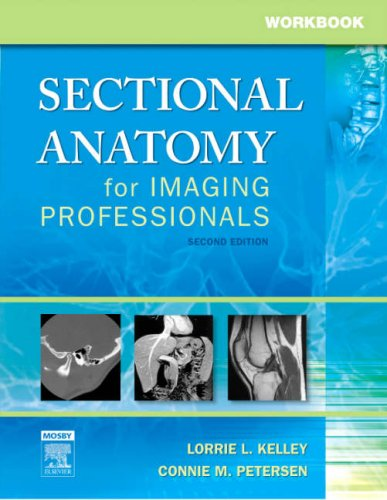 Workbook for Sectional Anatomy for Imaging Professionals  2nd 2007 (Revised) edition cover