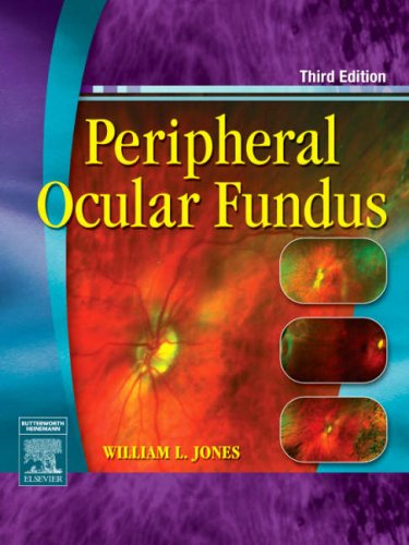 Peripheral Ocular Fundus  3rd 2007 (Revised) 9780750675055 Front Cover
