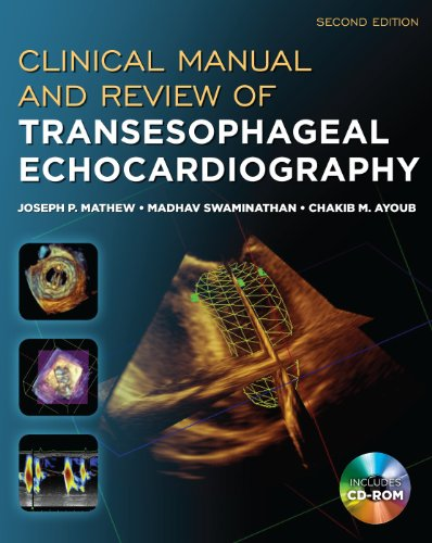 Clinical Manual and Review of Transesophageal Echocardiography  2nd 2011 edition cover