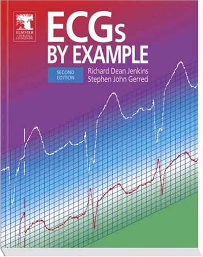ECGs by Example  2nd 2005 (Revised) 9780443074103 Front Cover