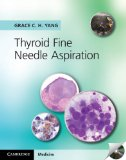 Thyroid Fine Needle Aspiration   2013 9781107618138 Front Cover