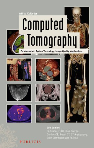 Computed Tomography Fundamentals, System Technology, Image Quality, Applications 3rd 2009 edition cover