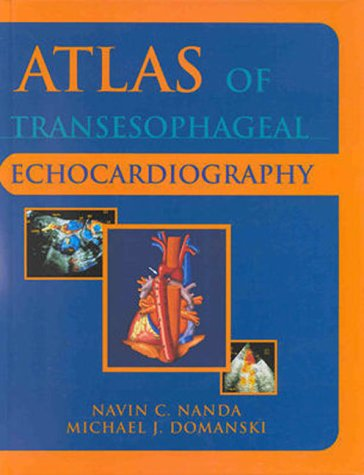 Atlas of Transesophageal Echocardiography   1998 9780683063202 Front Cover