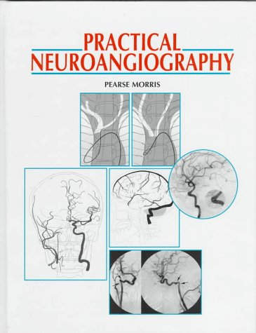Practical Neuroangiography   1997 9780683300208 Front Cover