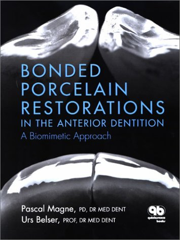 Bonded Porcelain Restorations in the Anterior Dentition : A Biomimetic Approach  2002 edition cover
