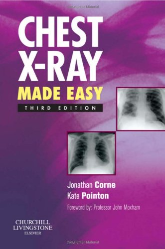 Chest X-Ray Made Easy  3rd 2009 edition cover