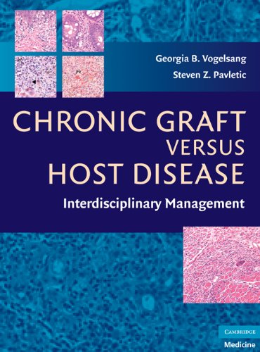 Chronic Graft Versus Host Disease Interdisciplinary Management  2009 9780521884235 Front Cover