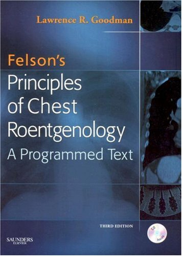 Felson's Principles of Chest Roentgenology A Programmed Text 3rd 2007 (Revised) edition cover