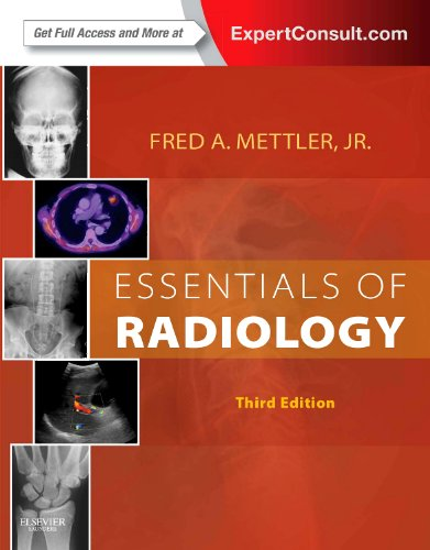 Essentials of Radiology Expert Consult - Online and Print 3rd 2013 edition cover