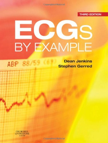 ECGs by Example  3rd 2011 edition cover