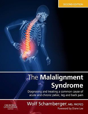 Malalignment Syndrome Diagnosis and Treating a Common Cause of Acute and Chronic Pelvic, Leg and Back Pain 2nd 2012 9780443069291 Front Cover