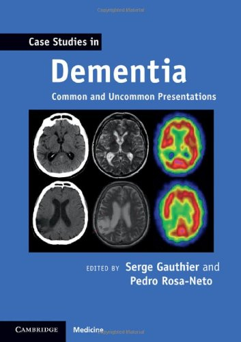 Case Studies in Dementia Common and Uncommon Presentations  2011 9780521188302 Front Cover