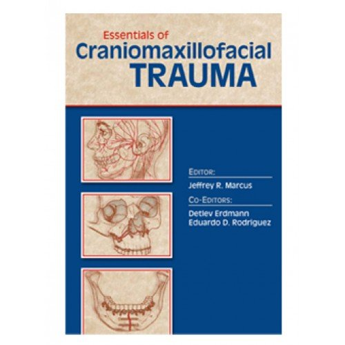 Essentials of Craniomaxillofacial Trauma   2012 9781576263327 Front Cover