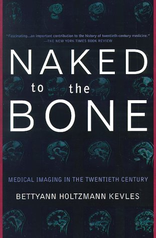 Naked to the Bone Medical Imaging in the Twentieth Century N/A 9780201328332 Front Cover