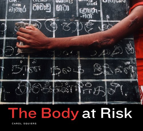 Body at Risk Photography of Disorder, Illness, and Healing  2005 9780520247338 Front Cover