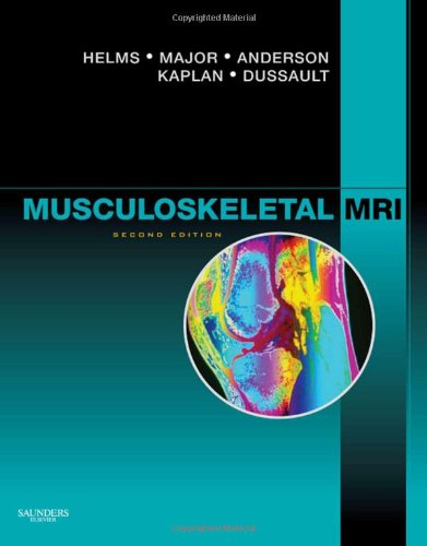 Musculoskeletal MRI  2nd 2009 edition cover