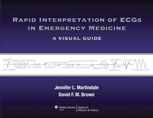 Rapid Interpretation of ECGs in Emergency Medicine A Visual Guide  2011 edition cover