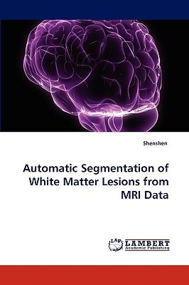 Automatic Segmentation of White Matter Lesions from Mri Dat N/A 9783838376431 Front Cover