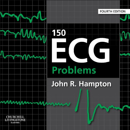 150 ECG Problems  4th 2013 edition cover