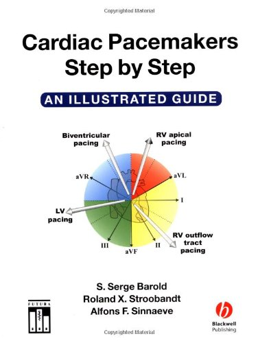 Cardiac Pacemakers Step by Step   2003 (Guide (Instructor's)) edition cover