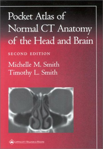 Pocket Atlas of Normal CT Anatomy of the Head and Brain  2nd 2001 (Revised) edition cover