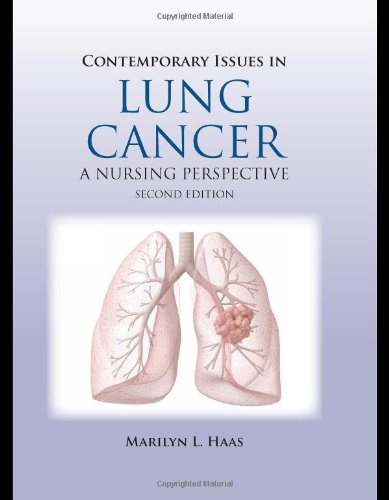 Contemporary Issues in Lung Cancer  2nd 2010 (Revised) 9780763760519 Front Cover