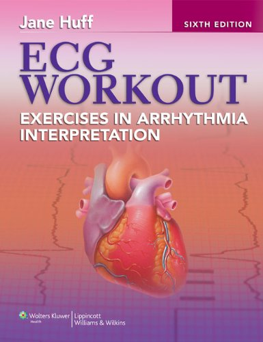 ECG Workout Exercises in Arrhythmia Interpretation 6th 2012 (Revised) 9781451115536 Front Cover
