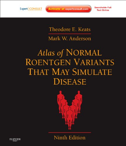 Atlas of Normal Roentgen Variants That May Simulate Disease Expert Consult - Enhanced Online Features and Print 9th 2013 edition cover