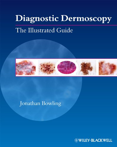 Diagnostic Dermoscopy The Illustrated Guide  2011 (Guide (Instructor's)) 9781405198554 Front Cover