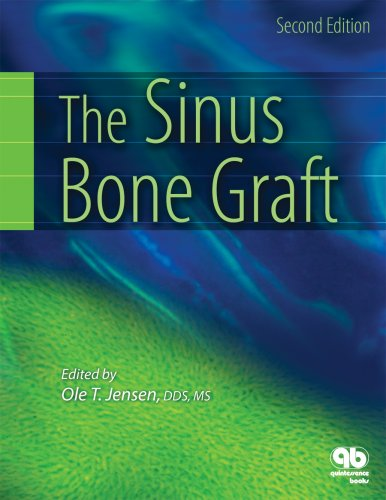 Sinus Bone Graft  2nd 2006 9780867154559 Front Cover