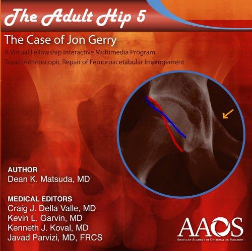 Adult Hip: Case 5 Arthroscopic Surgery for Femoroacetabular Impingement (Fai)  2012 edition cover