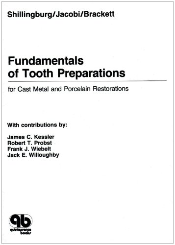 Fundamentals of Tooth Preparations For Cast Metal and Porcelain Restorations Revised  9780867151572 Front Cover