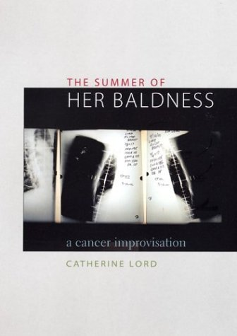 Summer of Her Baldness A Cancer Improvisation  2004 9780292702578 Front Cover