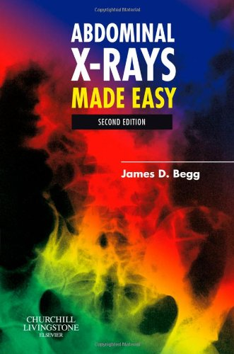 Abdominal X-Rays Made Easy  2nd 2006 (Revised) edition cover