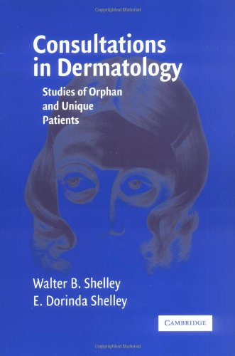 Consultations in Dermatology Studies of Orphan and Unique Patients  2006 9780521616584 Front Cover