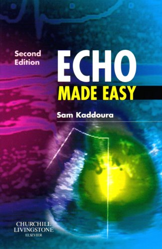 Echo Made Easy  2nd 2009 edition cover
