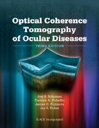 Optical Coherence Tomography of Ocular Diseases  3rd 2013 edition cover