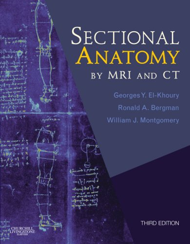 Sectional Anatomy by MRI and CT  3rd 2007 (Revised) edition cover