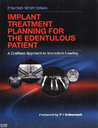 Implant Treatment Planning for the Edentulous Patient A Graftless Approach to Immediate Loading  2010 edition cover