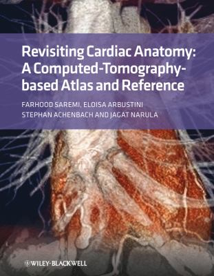 Revisiting Cardiac Anatomy A Computed-Tomography-Based Atlas and Reference  2010 9781405194693 Front Cover