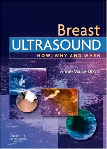 Breast Ultrasound How, Why and When  2007 edition cover