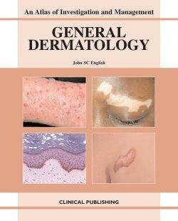 General Dermatology: An Atlas of Investigation and Management  2007 edition cover