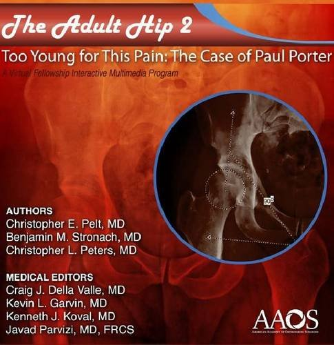 The Adult Hip Case 2: Acetabular Dysplasia, Too Young for This Pain, the Case of Paul Porter, a Virtual Fellowship Interactive Multimedia Program  2011 edition cover
