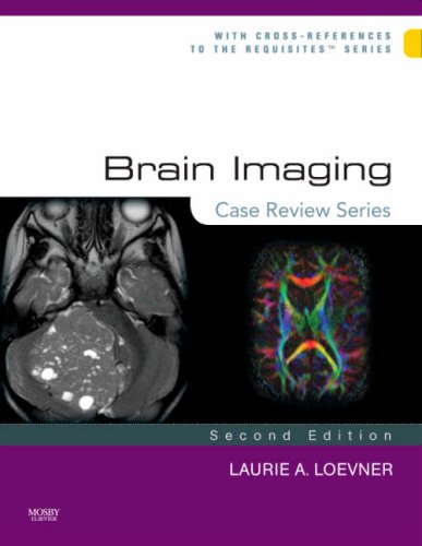 Brain Imaging  2nd 2008 edition cover