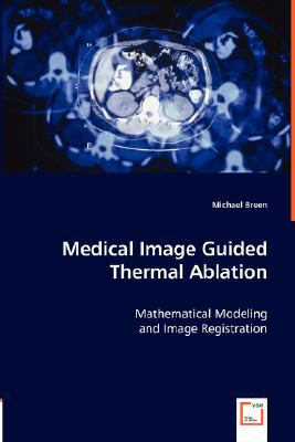 Medical Image Guided Thermal Ablation:   2008 9783836468800 Front Cover