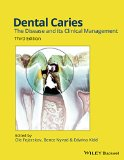 Dental Caries The Disease and Its Clinical Management 3rd 2015 edition cover