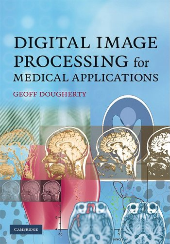 Digital Image Processing for Medical Applications   2009 9780521860857 Front Cover
