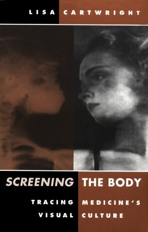 Screening the Body Tracing Medicine's Visual Culture  1995 edition cover